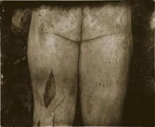 Sally Mann: Untitled #9; 2001; gelatin silver print with varnish